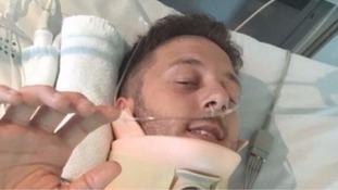 Bridegroom left paralysed in freak accident