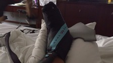 Alexis Sanchez posts gruesome pictures of injured ankle