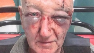 Arrest over pensioner who was beaten after asking man to stop urinating on his partner's house