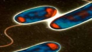 Legionnaires bug under a microscope