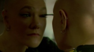Woman with alopecia calls for condition to be treated as disability