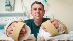 "Doncaster man says double hand transplant is better than a ""lottery win"""