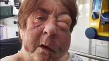 A Grandmother was left with fractured skull after brutal attack