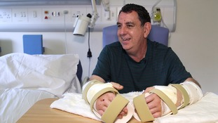 Chris King is the first person in the UK to have had a double hand transplant.