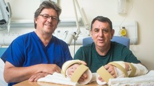First double hand transplant patient feels 'whole again' thanks to Guernsey surgeon