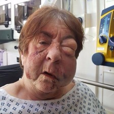 Barbara Dransfield was put into a medically induced coma after she developed pneumonia in hospital.
