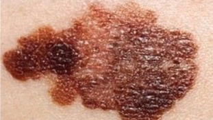Skin cancer: spotting the signs of melanoma