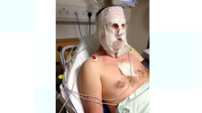 Guy McCallan suffered burns to his hands and face.