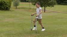 Lenny Pyne has Quadriplegic Spastic Cerebral Palsy.