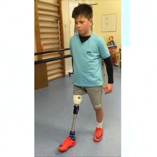 Seb Goold from Stamford in Lincolnshire lost his leg after falling from a moving coach.