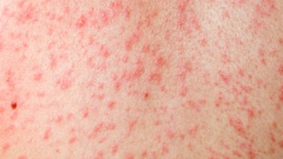 Measles: How it's caught, symptoms and treatment