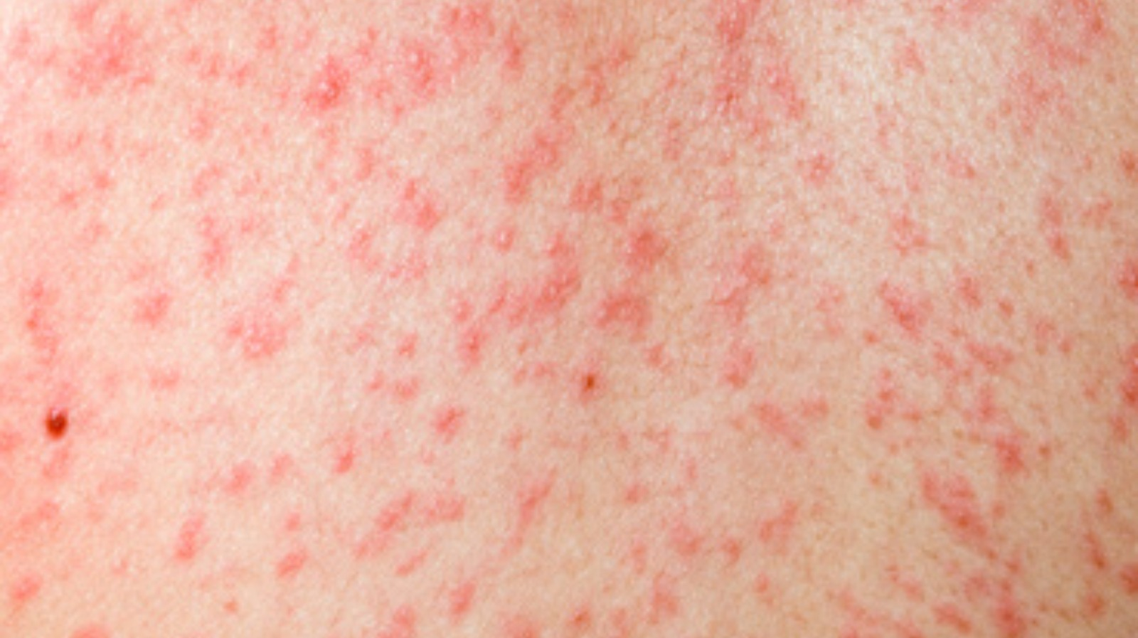 measles - photo #18