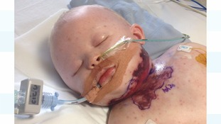 Charlie in hospital at Great Ormond Street hospital.