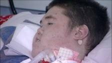 Liam Barker has defied the odds by surviving to his 18th birthday.