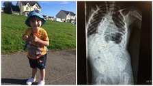 Mum's plea after 2-year-old son's crooked spine worsens