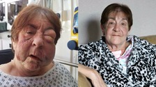 Disabled gran battered by robbers is fighting fit