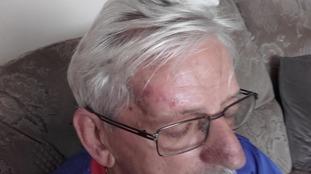Pensioner left badly bruised and shaken after alleged assault