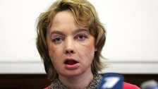 Isabelle Dinoire underwent the world's first partial face transplant