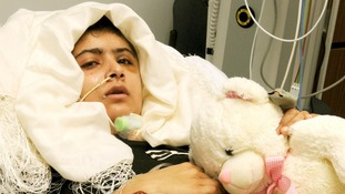 Malala Yousufzai, pictured with gunshot wounds to the head in the Queen Elizabeth Hospital in Birmingham.