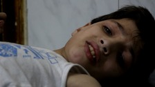 injured child in Aleppo