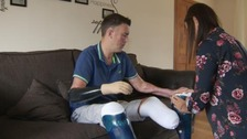 Bionic hand for Nottingham man after fundraising success