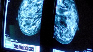 '500,000 to have cancer diagnosis every year by 2035', experts say
