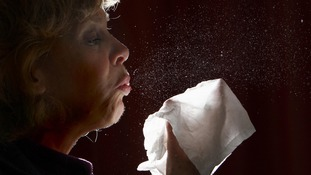 Surge in people admitted to hospital for allergic reactions