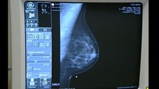 Breast cancer screenings.