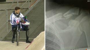 Cyclist reveals he will contest Tokyo despite 'nightmare' crash