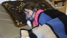 A girl receives treatment after a suspected gas attack in 2014.