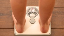Birmingham 'needs to tackle the growing obesity crisis'