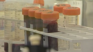 Cambridge University drug could help those with MS