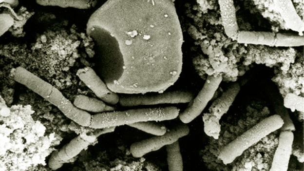 Anthrax Under A Microscope
