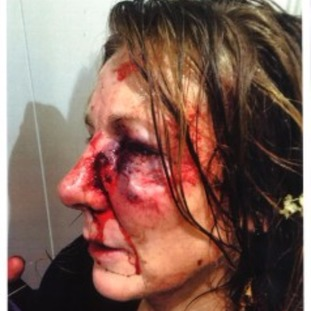 Philippa May released this picture of her severe facial injuries in a bid to catch her attacker.