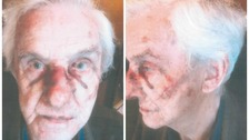 John Bennett was left with severe facial injuries