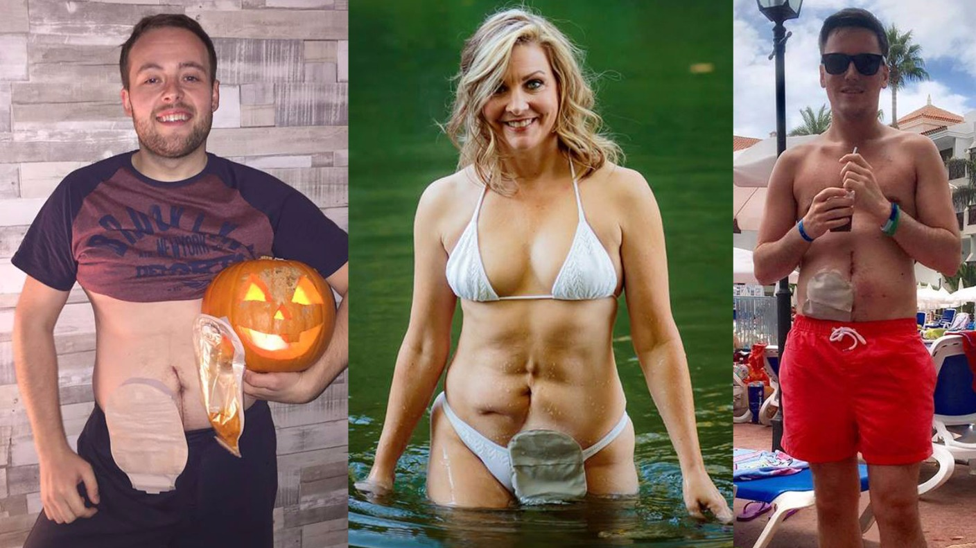 Twelve People With Stoma Bags Bare All For Calendar To