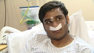 Ummad Farooq in bed recovering from his surgery at the Queen Elizabeth hospital
