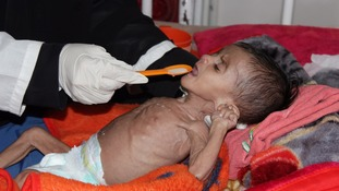 A malnourished child