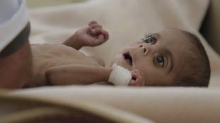 A malnourished child in Yemen.
