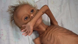 A malnourished boy lies on a bed at a hospital in Houdieda, Yemen.