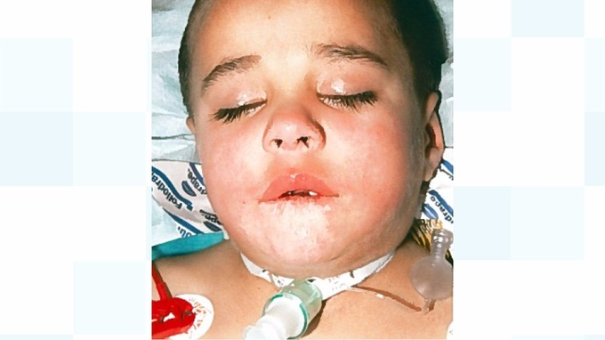 Ayman suffered severe burns to his mouth, airway, oesophagus and stomach