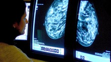 BCN said Nice's decision was a 'huge setback' for the treatment of advanced breast cancer