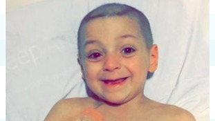 Bradley is all smiles despite his painful treatment