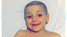 Brave Bradley all smiles as pioneering treatment starts
