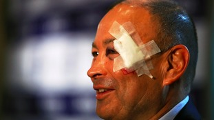 England rugby coach Eddie Jones suffers head injury after fall
