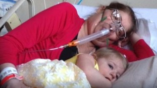 Doctors save a mother's life by removing her lungs for six days
