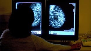 Cancer patients are being forced to wait longer for treatment