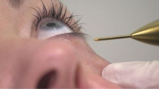 Could Botox improve our wellbeing?