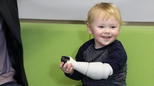 Sol's current arm is the second prototype Mr Ryan created.