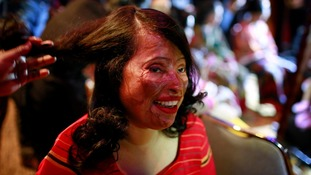 Acid attack survivors take to the catwalk in Bangladesh